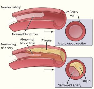 Peripheral arterial disease plaque