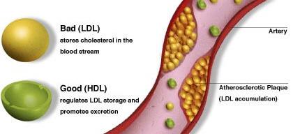 cholesterol screening specialist blood flow