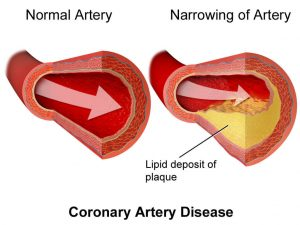 congestive heart failure of artery