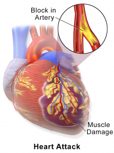 congestive heart failure to heart attack